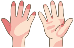 tidemark-hand